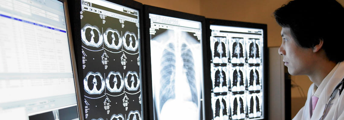 Radiologist looking at scans