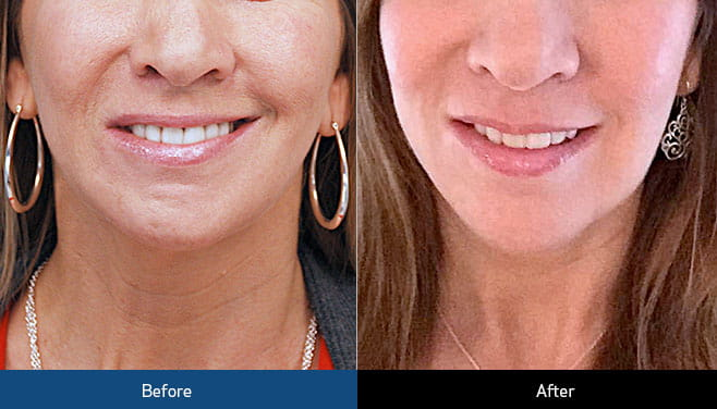 botox-treatment-before-and-after
