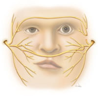 cross face nerve graft illustration