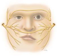 cross face nerve graft illustration