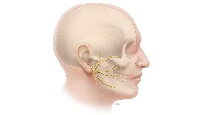 Reconstruction with Nerve Grafts