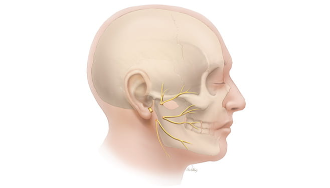 Segmental Defect Facial Nerve