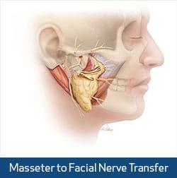 masseter nerve illustration