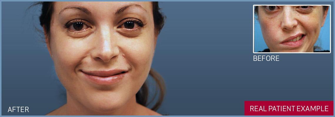 masseter facial nerve transfer banner