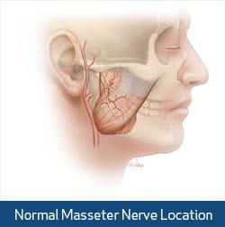 normal masseter nerve illustration