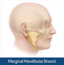 myectomy illustration