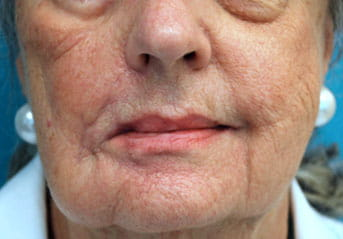 lip symmetry procedure