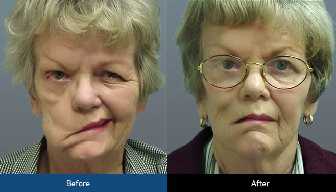 mid face lift before and after