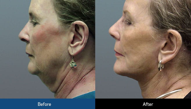 neck lift before and after
