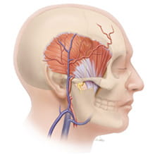 temporalis illustration