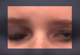Gold-Eye-Weight-Insertion