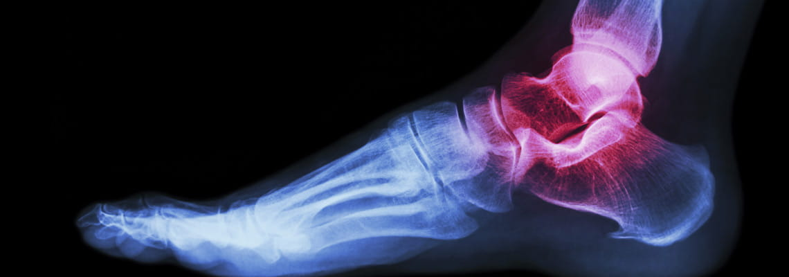 Houston Methodist Orthopedics and Sports Medicine - ankle joint
