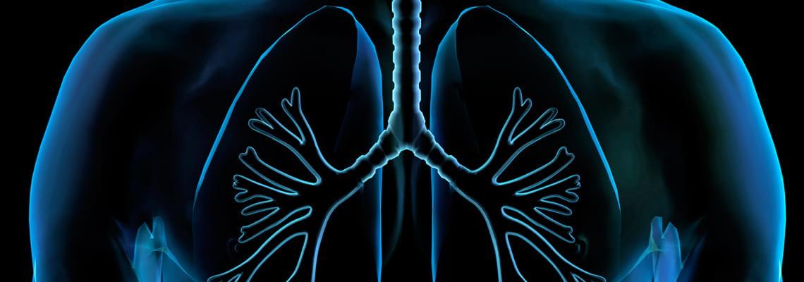 Houston Methodist Pulmonology lung diagram