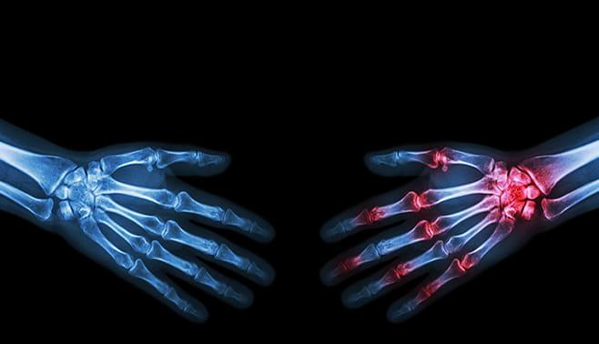 Rheumatology | Houston Methodist