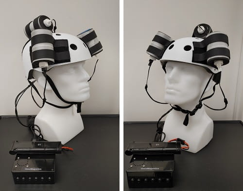 Device helmet with 3 oncoscillators attached. They are connected to a controller box powers by a rechargeable battery.