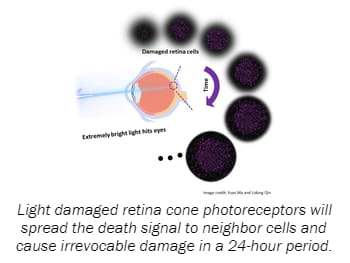 Light damaged retina cone photoreceptors will spread the death signal to neighbor cells and cause irrevocable damage in a 24-hour period.