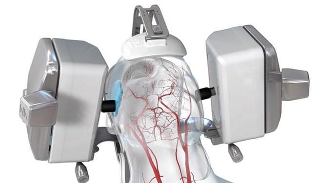 image of Lucid™ M1 Transcranial Doppler Ultrasound System®