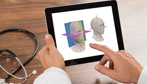 Image of iPad showing AnataomicAligner App
