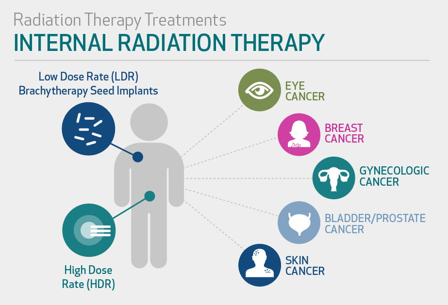CancerTreatment_Graphic2