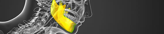 Banner for Contemporary Surgical Planning for Jaw Deformities