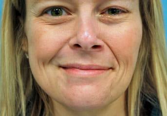 cross face nerve grafting