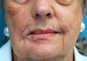 lip symmetry procedure