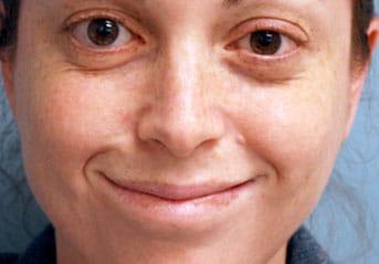 masseter to facial nerve transfer