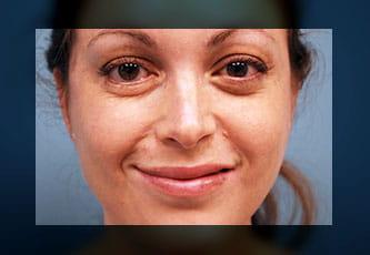 nerve transfer - cross face nerve graft