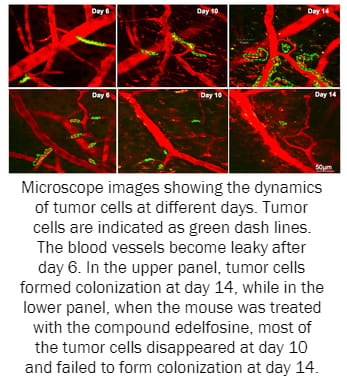 Microscope images showing the dynamics of tumor cells at different days. Tumor cells are indicated as green dash lines. The blood vessels become leaky after day 6. In the upper panel, tumor cells formed colonization at day 14, while in the lower panel, when the mouse was treated with the compound edelfosine, most of the tumor cells disappeared at day 10 and failed to form colonization at day 14.