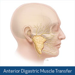 digastric muscle transfer illustration