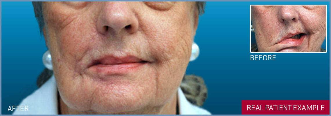 lower lip symmetry banner