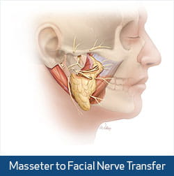 masseter nerve illustration