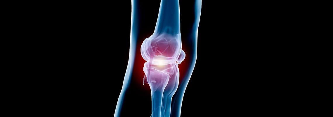 Knee on patella location